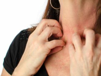 Atopinis dermatitas - rizikos veiksniai ir simptomai