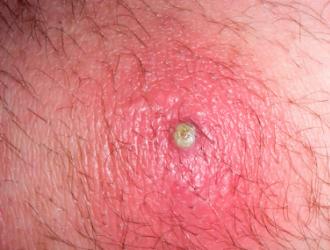 Pūlingos odos ligos