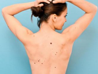 Odos vėžys - rizikos veiksniai ir simptomai