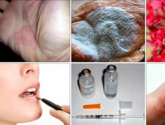 Dažniausiai pasitaikantys alergenai