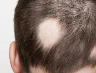 Židininė alopecija