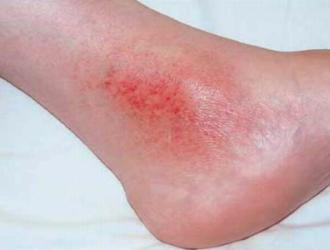 Stazinis dermatitas