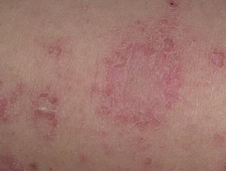Monetiškasis dermatitas