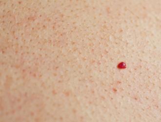 Vyšninės angiomos