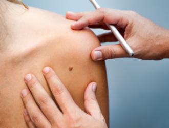 Odos vėžio diagnostika
