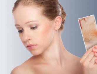 Atopinio dermatito gydymas