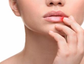 Kitos lūpų ligos