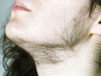 Padidėjęs plaukuotumas