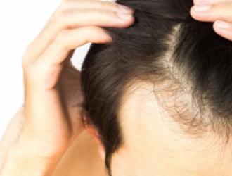 Vyrų androgeninė alopecija