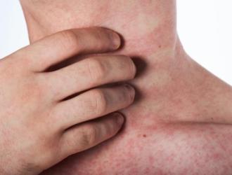 Niežtintys odos bėrimai, gydymas