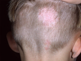 Galvos odos grybelis