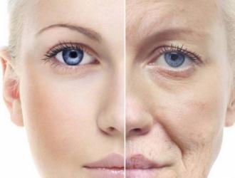 Priešlaikinis odos senėjimas