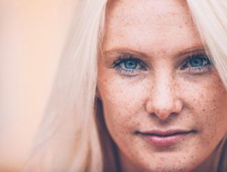 Veido odos hiperpigmentacija