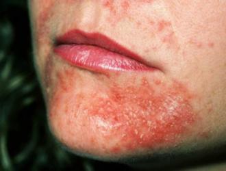 Perioralinis dermatitas