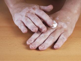 Vitiligo gydymas