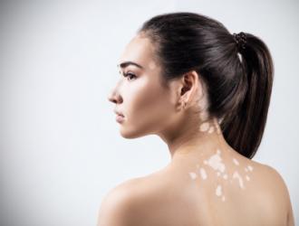 Odos priežiūros rekomendacijos sergant vitiligo