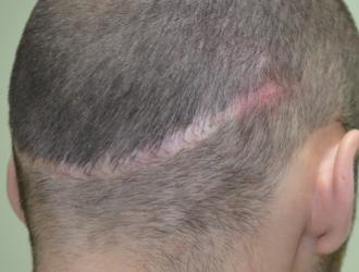 Randinė alopecija