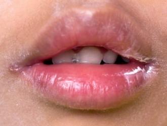 Lūpų uždegimai