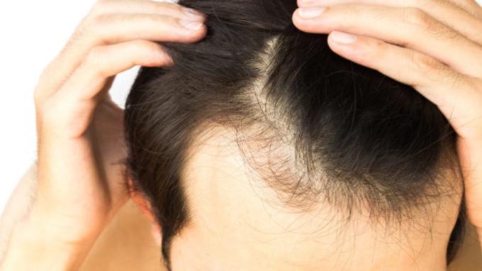 hipertenzija ir plaukų slinkimas