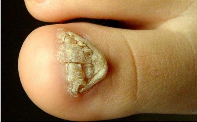 Dermatitas nagu grybelis