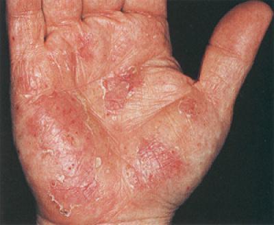Odos grybelis ant nugaros gydymas